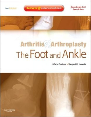 The Foot and Ankle (Arthritis and Arthroplasty)