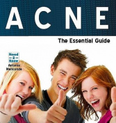 Acne - the Essential Guide