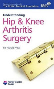 Understanding Hip & Knee Arthritis Surgery