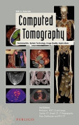 Computed Tomography