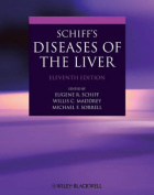 Schiff's Diseases of the Liver [With Web Access]