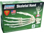 Lindberg Skeletal Hand