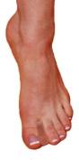 PerformanceFoot Gel Toe Separator