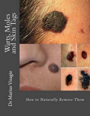 Warts, Moles and Skin Tags: How to Naturally Remove Them