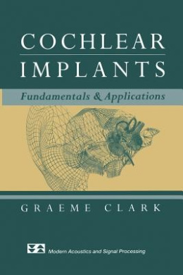 Cochlear Implants: Fundamentals and Applications (Modern Acoustics and Signal Processing)