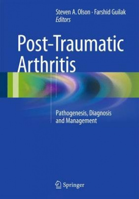Post-Traumatic Arthritis: Pathogenesis, Diagnosis and Management