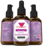 BEST Organic Rosehip Seed Oil - 100% Pure & Natural - Moisturise Skin, Hair, Face and Nails - Premium Beauty Oil - Unrefined, Cold Pressed & Virgin - Highest Quality Available backed by Amazing Guarantee