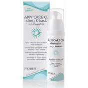 aknicare cb chest and back fluid emulsion 100 ml