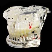 icarekit (TM) Dentist Dental Implant Disease Teeth Model with Restoration & Bridge Tooth Study