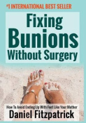 Fixing Bunions Without Surgery