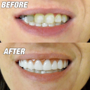 New! Instant Smile Comfort Flex. One Size Fits All. Fix Your Smile At Home Within Minutes! Get That Smile That You Have Always Wanted.