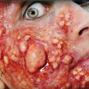 Tinsley Transfers OUTBREAK / Boils / Disease - Film Quality Realistic 3D Prosthetic Makeup FX Transfer. Apply With Water.
