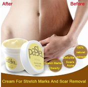 Pasjel Cream For Stretch Marks And Scar Removal Powerful To Stretch Marks Maternity Skin Body Repair Cream