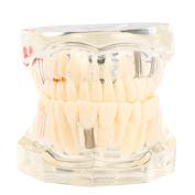 Anself Dental Implantation Disease Teeth Model Teaching Teeth Tool Dental Adult Typodont Removable Teeth Model